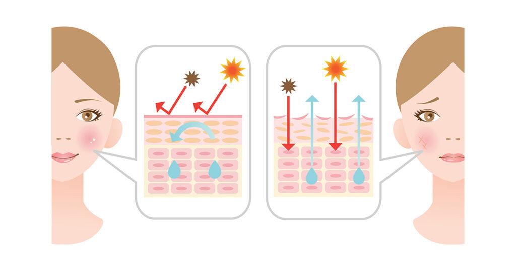Essenté ochrana před UV zářením